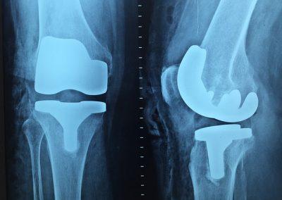 Rentgen kolene s náhradou